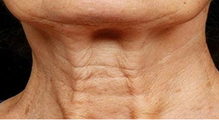 Help Tighten That Loose Neck Skin Beauty Health Times