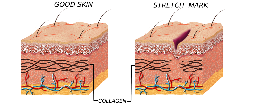 How To Hide Stretch Marks Beauty Health Times